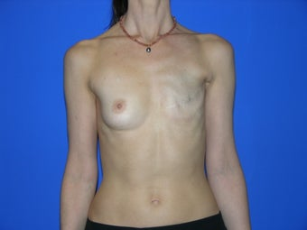 Breast Reconstruction before 482769
