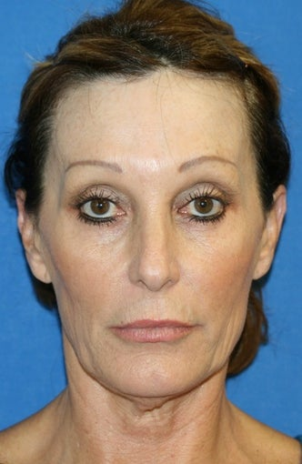 Facelift with Extended Necklift and Upper Blepharoplasty before 641627