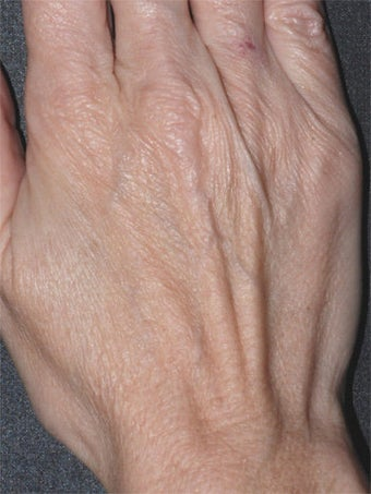 Aging Hands before 340590