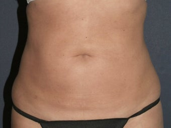 Liposculpture 486595