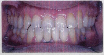 Anterior Crossbite before 353446