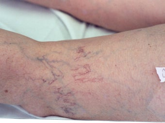 Sclerotherapy before 297055