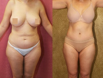 tummy tuck before 304702