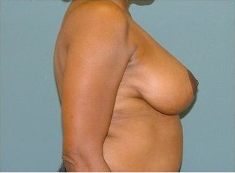 Breast Reduction 97010