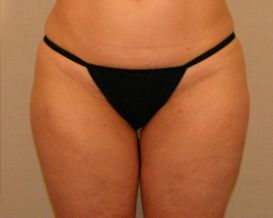 "Liposuction Lateral Thighs ""saddlebags"" after 380048"