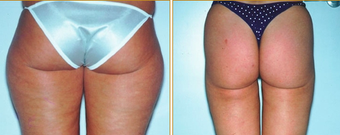 Liposuction before 271073