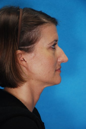 Rhinoplasty before 354150