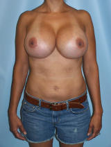 Revisionary Breast Surgery after 96804