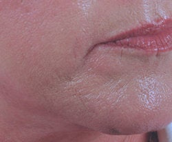 Chin rejuvenation  before 91308