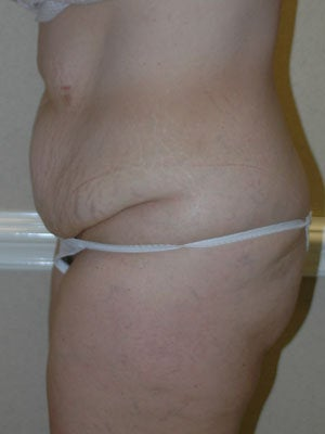 Abdominoplasty with liposuction of hips, flanks, medial thighs 406075