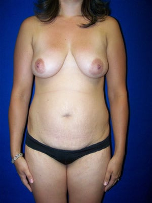 Breast Augmentation Surgery with Benelli Lift before 123354