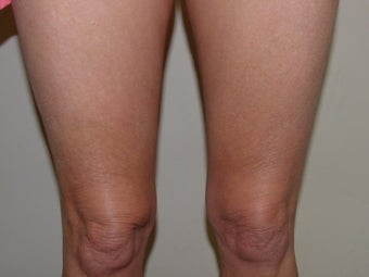 Thermage of kneees before and after after 109790