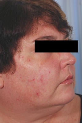 Laser Acne Treatment before 82969