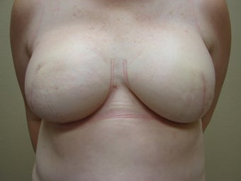 Nipple / Areola Reconstruction before 385072