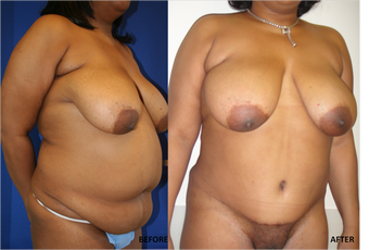 Abdominoplasty (tummy tuck), Flank Liposuction after 328417