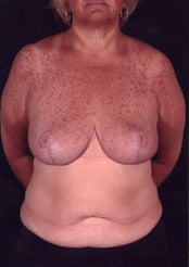Minimal Scar Breast Reduction after 85815