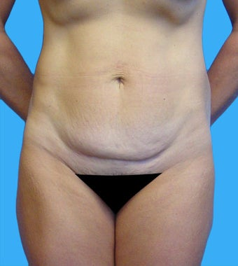 High-Definition Tummy Tuck before 173132