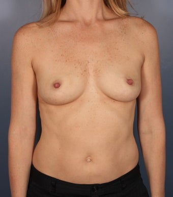 Breast augmentation - silicone, submuscular