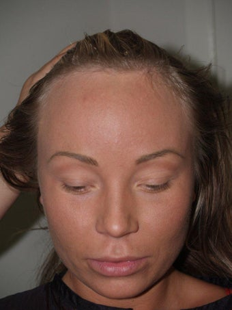 Surgical Hairline Advancement Procedure before 535779