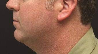 Chin Implant and Laser-Assisted Lipocontouring of Neck before 406765