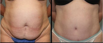 28 year old female- mini tummy tuck before 644115
