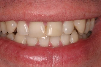 porcelain crowns 330389