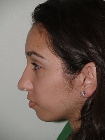 Rhinoplasty-  external approach before 174850