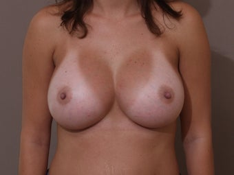 Silicone Breast Augmentation/ Breast Implants after 514906
