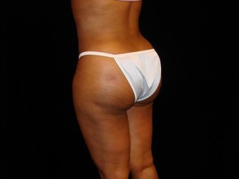 Buttocks Augmentation 517504