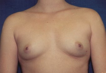 Breast Augmentation before 266922