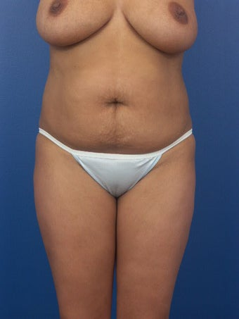 Tummy Tuck  before 453984