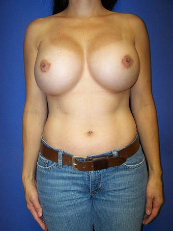 Breast Augmentation Revision before 78865