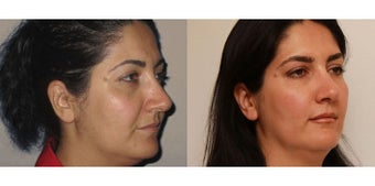 Facial Rejuvenation, non-surgical 450125