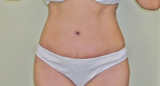 Abdominoplasty  after 491366