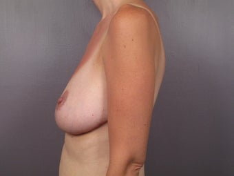 Breast Lift after 311069
