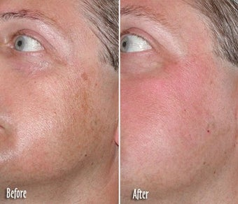 IPL for Age Spots and Freckles