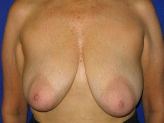 Breast Lift before 621982
