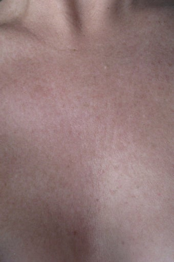 Chest wrinkles treated with Fraxel Restore after 152213