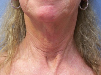 Neck lift before 591055
