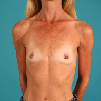 Breast augmentation with saline implants before 53601