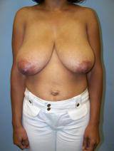 Breast Reduction Surgery before 130073