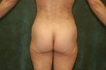 Women's Buttocks Augmentation  518120