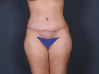 Tummy Tuck after 263241