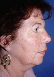 Facelift and Eyelid Surgery 316338