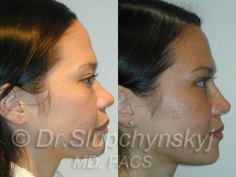 Asian Rhinoplasty before 624582