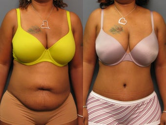 Tummy tuck before 264466
