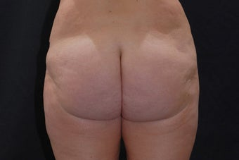 Buttock Augmentation through Fat Transfer after 423709