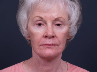 62 year old with facial aging