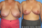 Breast Reduction before 217807