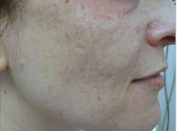 Fractional laser used to treat acne scars after 460041